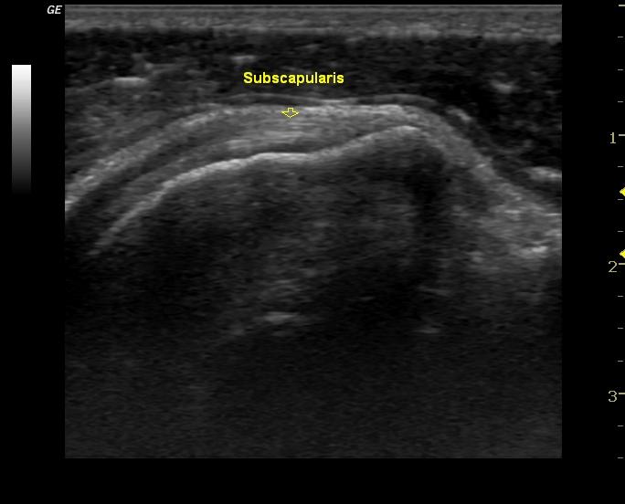 Olkapään Subscapularis -lihaksen jänne. Oikealla (vaalea ympyrä) hauiksen pitkän pään jänne aksiaalisesti kuvattuna