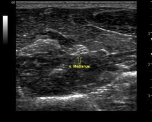 Kyynärvarren Medianus -hermon aksiaalinen näkymä