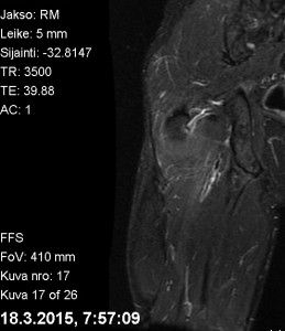 Takareiden MRI